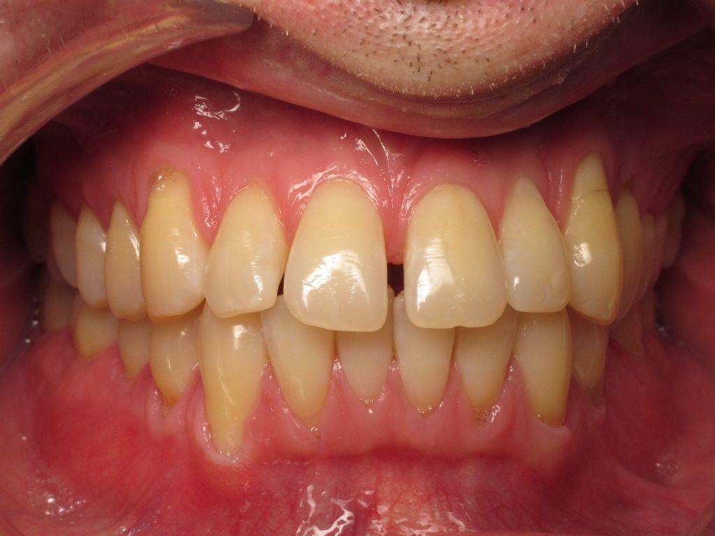 Dents du bonheur orthodontie