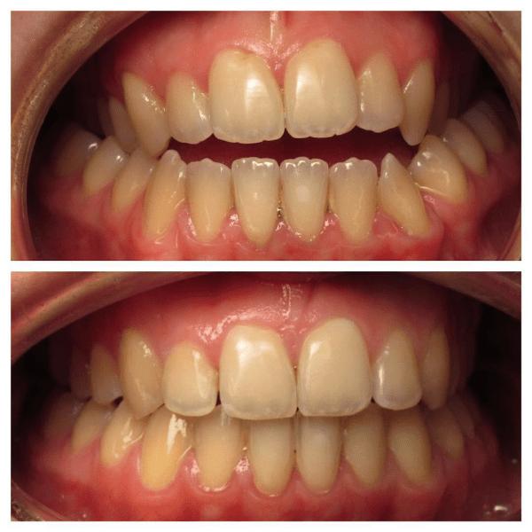 Orthodontiste à Lille et Hazebrouck